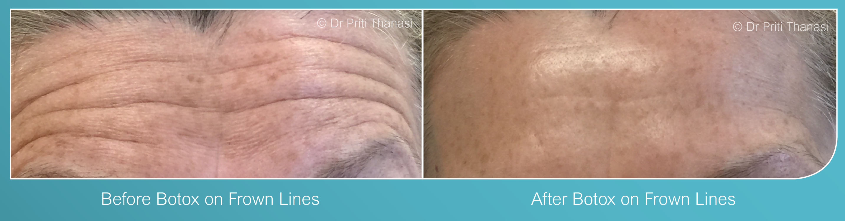 Botox Treatment Leicester
