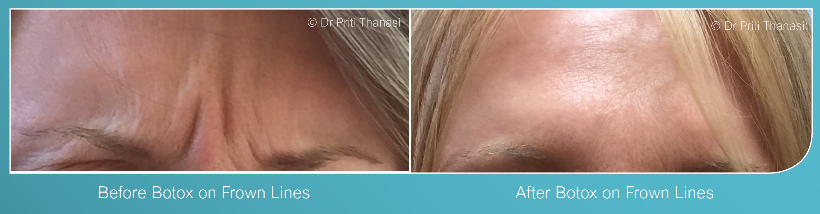 Botox in Syston, Leicester