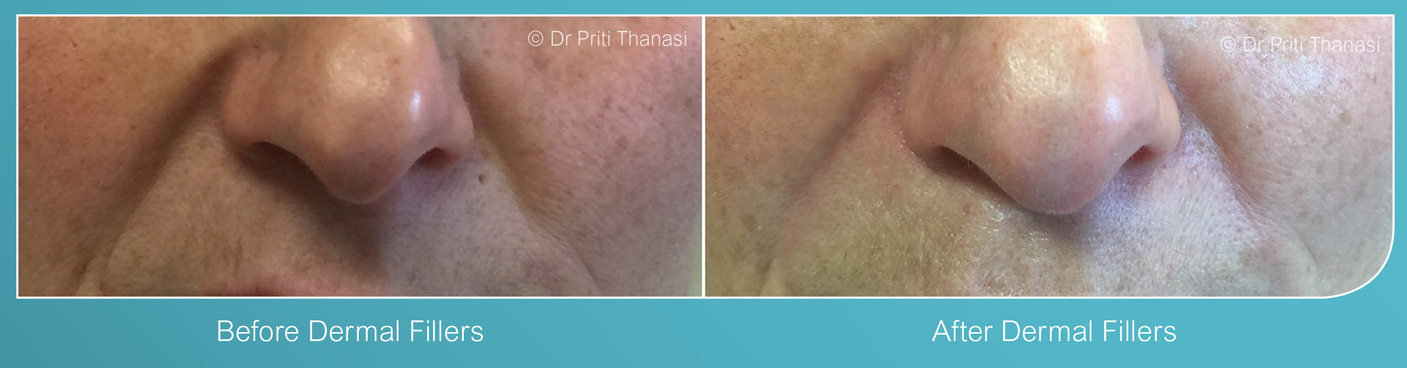 Dermal Fillers Treatment Leicester