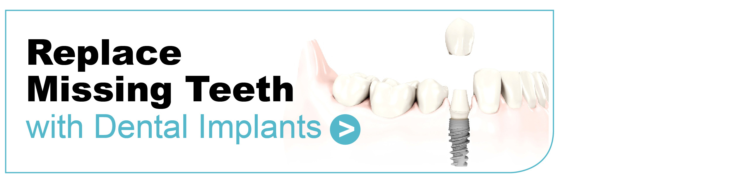 Dental Implants Leicester